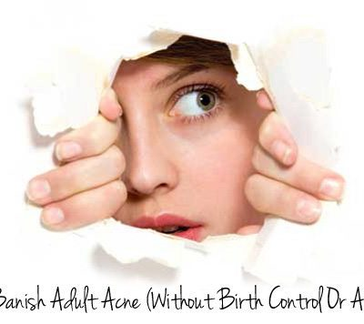 How to banish adult acne (without birth control or Accutane)